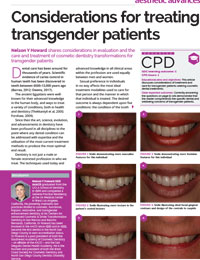 Considerations for Treating Transgender Patients