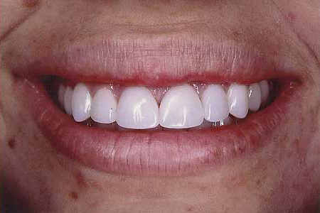 Bright white naturally shaped front teeth
