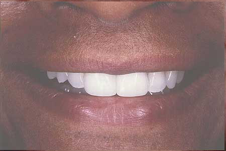 Composite veneers closing gap between front teeth