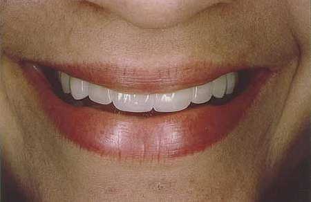 Gorgeous white smile with all-porcelain restorations