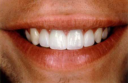 Smile repaired to natural beauty with veneers