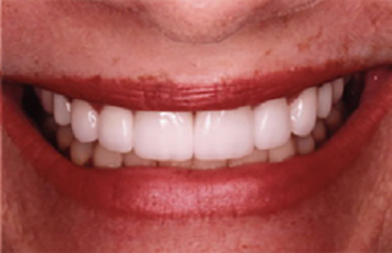 Gapped smile repaired with crowns and veneers