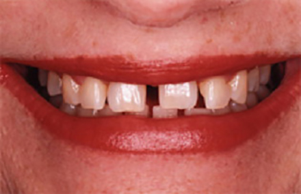 Smile with large gaps between front teeth