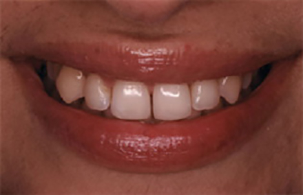 Smile with unevenly spaced discolored teeth