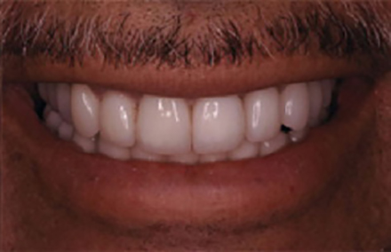Crowns repairing smile with large gaps