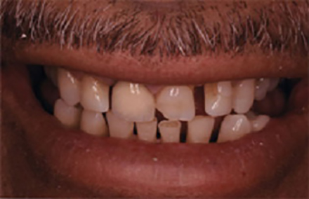 Malformed teeth with large gaps