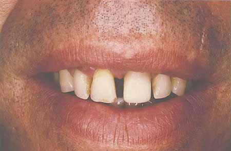 Smile with severe gap between front teeth