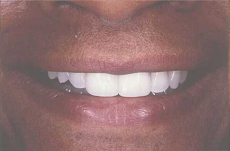Composite resin repaired flawless smile