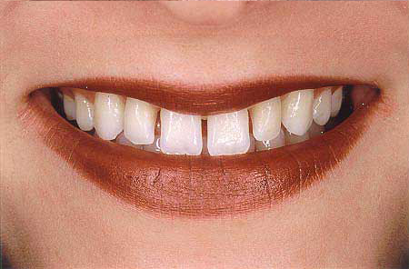 Teeth unevenly spaced after orthodontic care