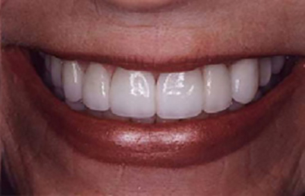 Repaired smile with Empress crowns on front teeth