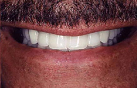 Top and bottom teeth repaired with dental crowns