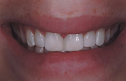 Beautiful smile perfected with composite restorations
