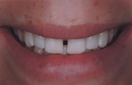 White smile with gap between front teeth