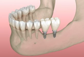 Animated smile with mini dental implant tooth replacement