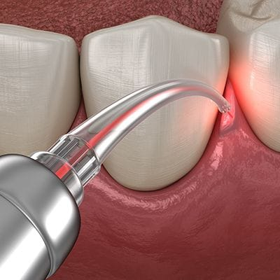 Animated laser periodontal therapy