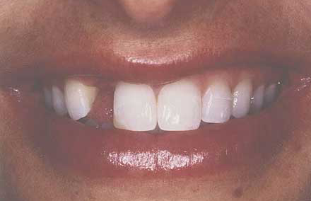 Smile with missing front tooth