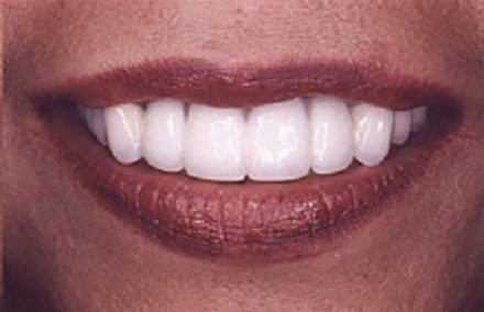 woman with missing teeth