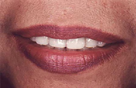 Woman with stubby looking front teeth
