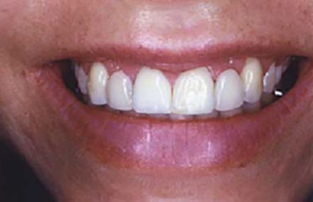 Smile with uneven gum line