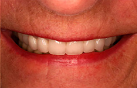 Beautifully reshaped smile with Empress veneers