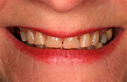 Broken and yellowed smile with gaps between teeth