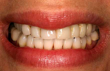 Crowded smile with worn down front teeth