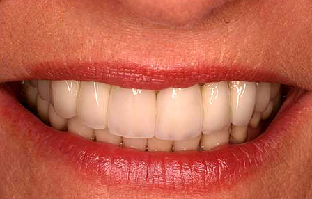 Natural looking upper tooth replacement
