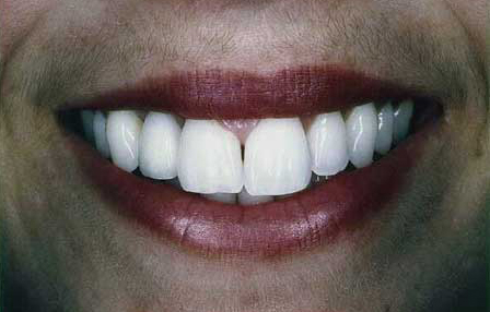 Natural looking fixed bridge tooth replacement