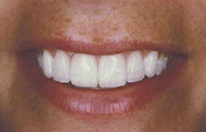Crooked smile enhanced with all porcelain veneers