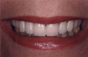 Woman's darkened teeth repaired with Empress crowns