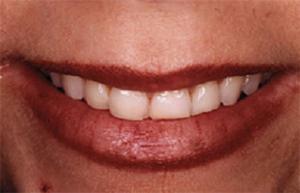 Woman with short stubby front teeth