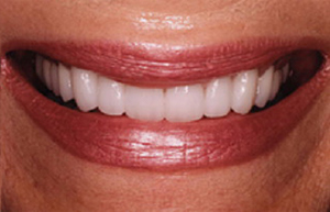 Woman's short teeth rebuilt with Empress veneers