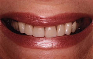 Yellowed teeth with dark stains between