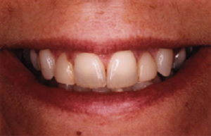 Woman with worn and thin tooth enamel
