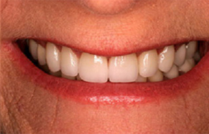 White aligned smile with veneers crowns and bridges
