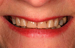 Yellowed worn teeth with gaps between