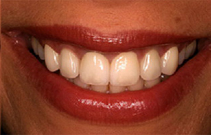 Front teeth corrected with six dental crowns