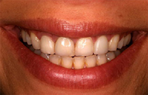 Front teeth with discolored fillings and wear