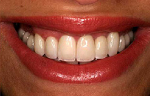 Beautiful smile following zirconia restoration