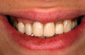 Teeth with staining around gum line