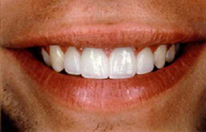 Same man's smile repaired with crowns and veneers