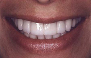 Woman's smile repaired with eight Empress Veneers