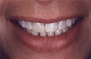 Woman's smile with discolored fillings and teeth