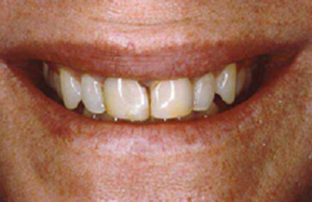 Woman's two front teeth discolored and cracked