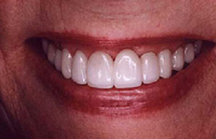 Natural looking Empress crown repaired tooth