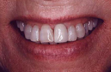 Damaged left front tooth discolored at gums