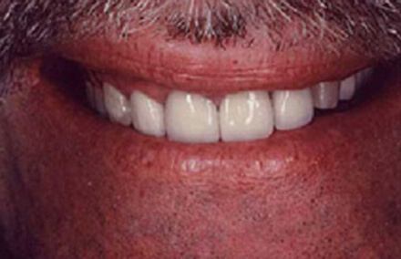 Man's unnatural looking front teeth dental crowns