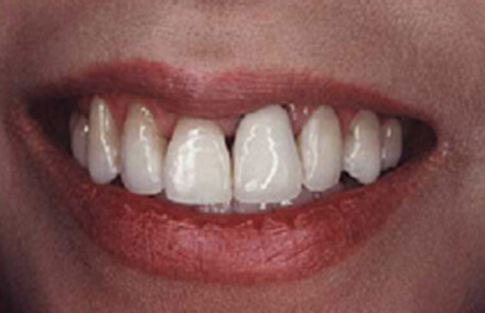 Teeth with dark lines at gums