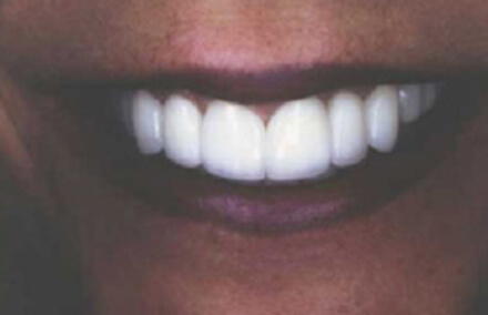 Smile with healthy beautiful teeth and gums