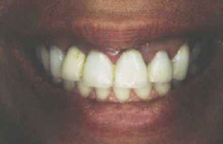 Smile with poorly crafted crowns and swollen gums